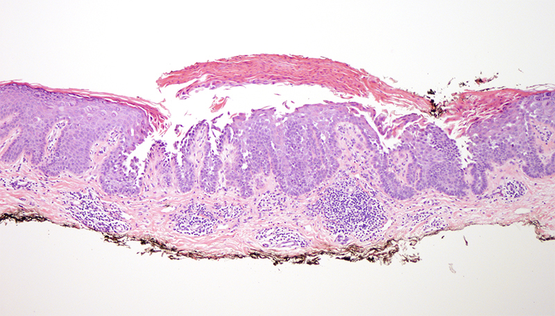 Slide 2: There is acanthosis with supervening acantholytic dyskeratosis and overlying parakeratosis.