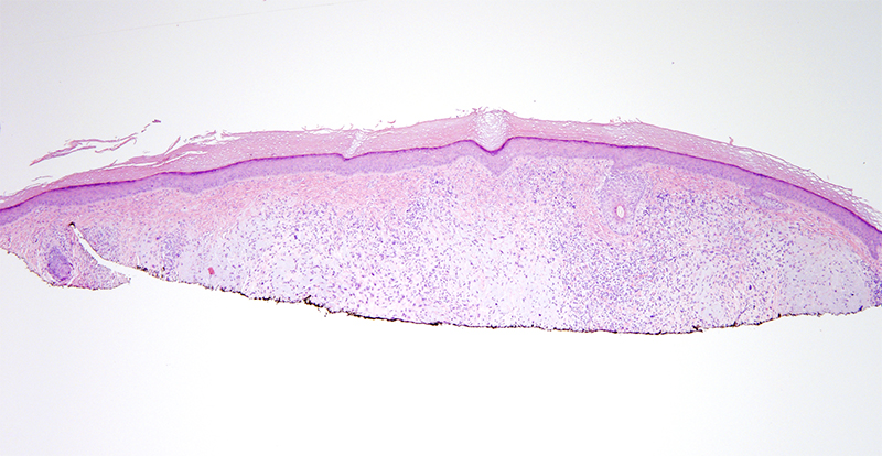 Slide 1: 85 year-old woman with a facial mass.  Low power examination reveals a dermal based neoplasm.