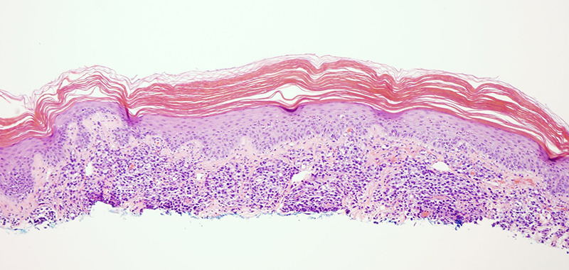 Slide 1: 88 year-old man with abdominal lesions.  The biopsy shows an epidermal response ranging from hyperplasia to zones of attenuation.  The epidermis is surmounted by a very thick parakeratotic scale.