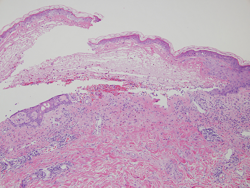 Slide 1: A 90 year old male patient presents with blisters on the trunk, arms, skin, and scalp. There is frank detachment of the epidermis from the dermis in the biopsy specimen.