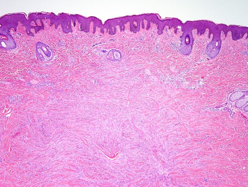 Slide 2: The excision specimen reveals a dermal-based proliferation with irregular, infiltrative margins. The overlying epidermis exhibits pseudoepitheliomatous hyperplasia.