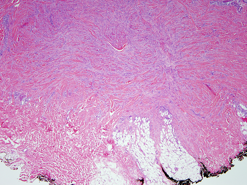 Slide 3: The excision specimen shows a very cellular spindle cell proliferation that assumes a somewhat plexiform growth pattern within the dermis.