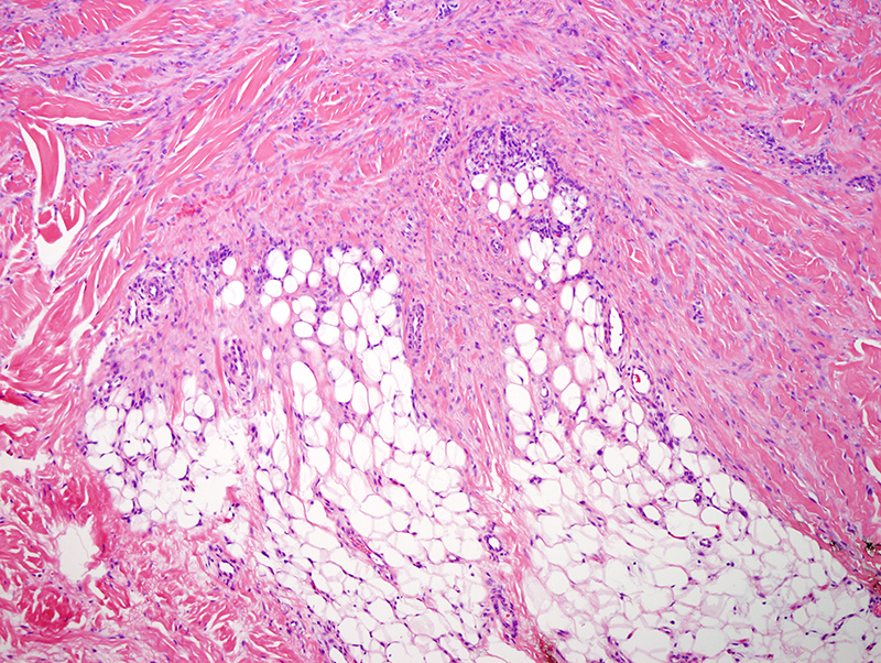 Slide 4: The lesion does extend fairly deep, focally into the interlobular septa of the fat.