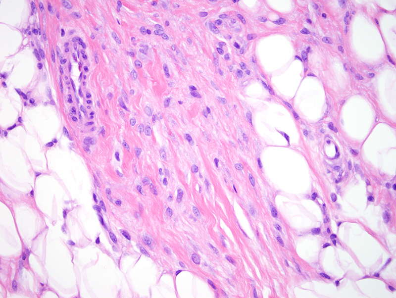 Slide 6: Tumor cells infiltrate into the interlobular septa of the fat.