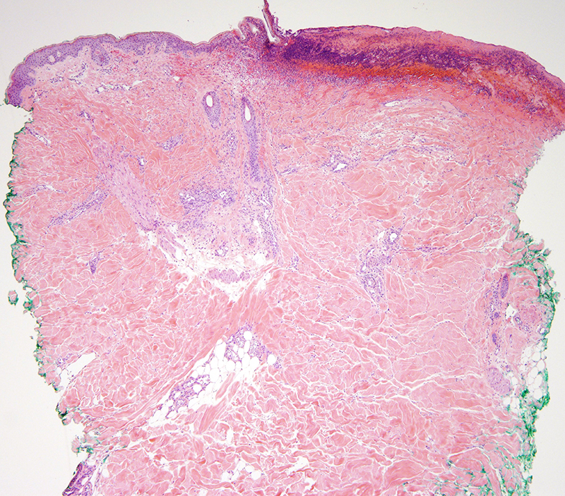 Slide 1: Young man with a complicated medical history and prolonged stay in the ICU. Multiple ulcerated lesions of the buttock. <br /> There is a superficial ulcer which in part is likely of traumatic based etiology.