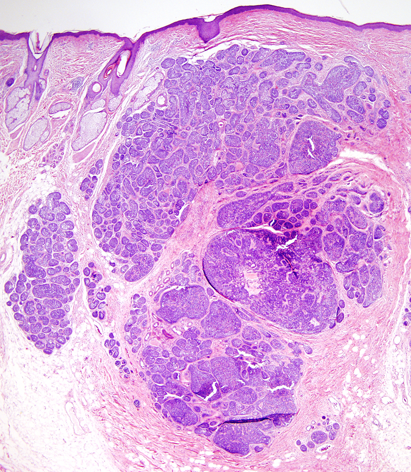 Slide 1: 40 year-old man with a scalp lesion.   The specimen shows a circumscribed nodule composed of monomorphous appearing basaloid islands invested by condensed eosinophilic stroma.