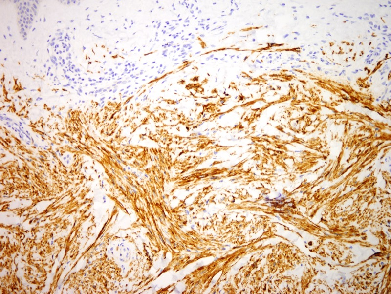 Slide 4: Immunohistochemistry reveals the tumor cells to express desmin.