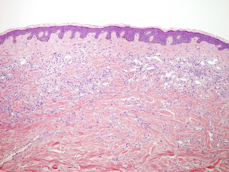 Slide 1: 80 year-old woman with a 0.6 cm pink nodule of the breast and a history of treated breast carcinoma. <br><br>There are irregular vascular channels within the dermis that assume an infiltrative growth pattern along the pre-existing connective tissue framework.