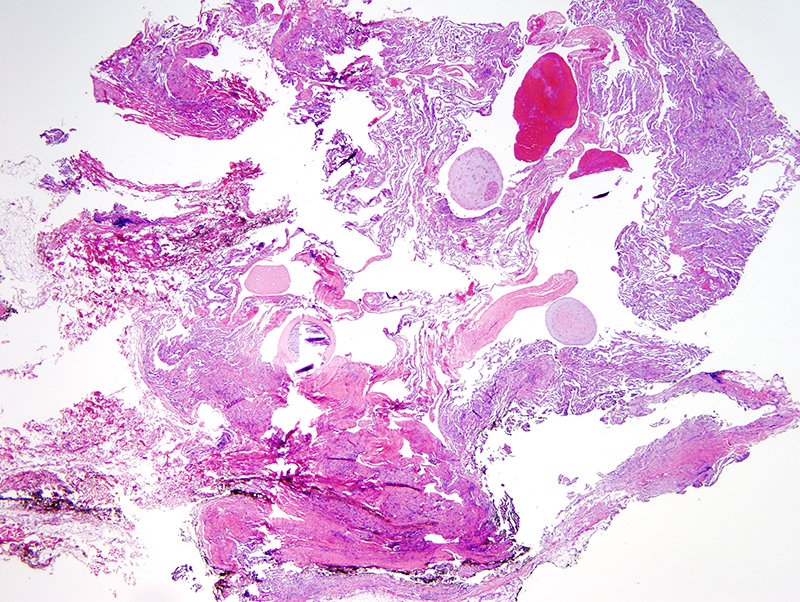 Slide 1: 65 year-old woman with an abdominal lesion. R/O angiolipoma. Within the subcutaneous fat there is a very distinct vasoformative tumor. Even at low power, we can identify organizing thrombi.