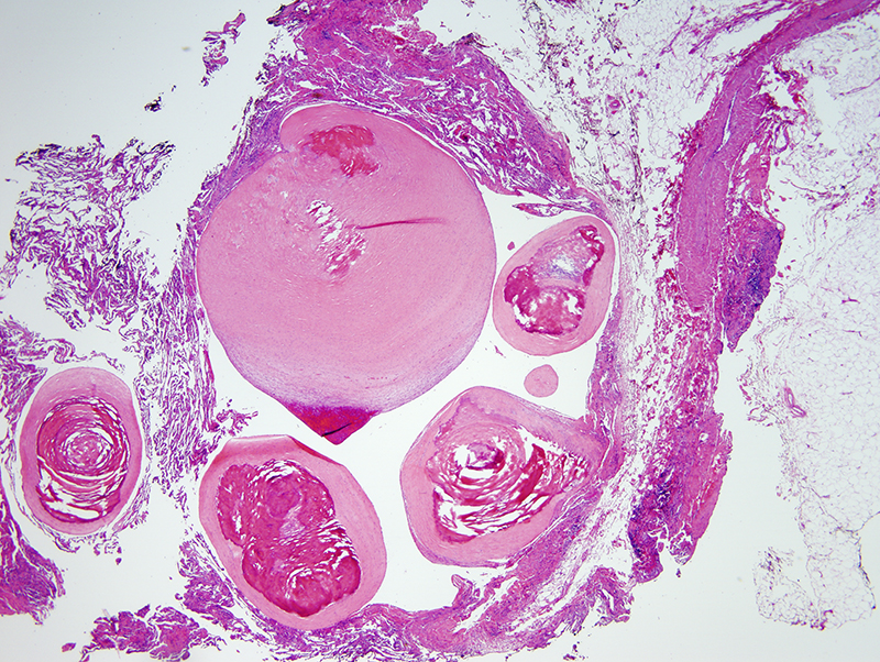 Slide 2: The thrombi have undergone a hyalinizing fibrosis with dystrophic calcification.