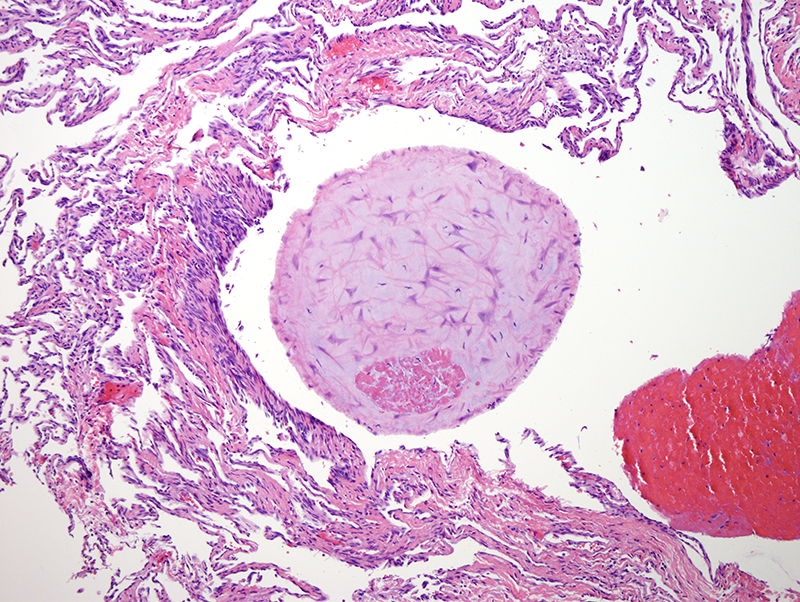 Slide 6: Organizing thrombi with adjacent vasoformative delicate septal-like structures.
