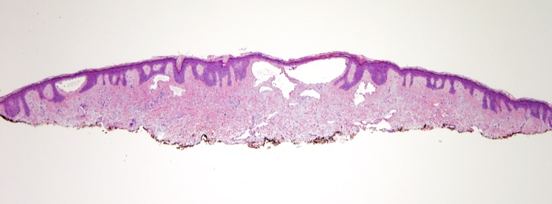 Slide 1: New pink-purple lateral chest lesion in a 70 year-old woman with a history of breast cancer. <br><br>Scanning magnification of the biopsy shows irregular vascular channels within the dermis.