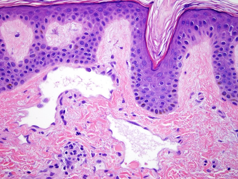 Slide 3: The two primary categories are atypical vascular lesion and angiosarcoma. This case has the classic features of the so called atypical vascular lesion and does not have any worrisome features concerning for a post radiation angiosarcoma.