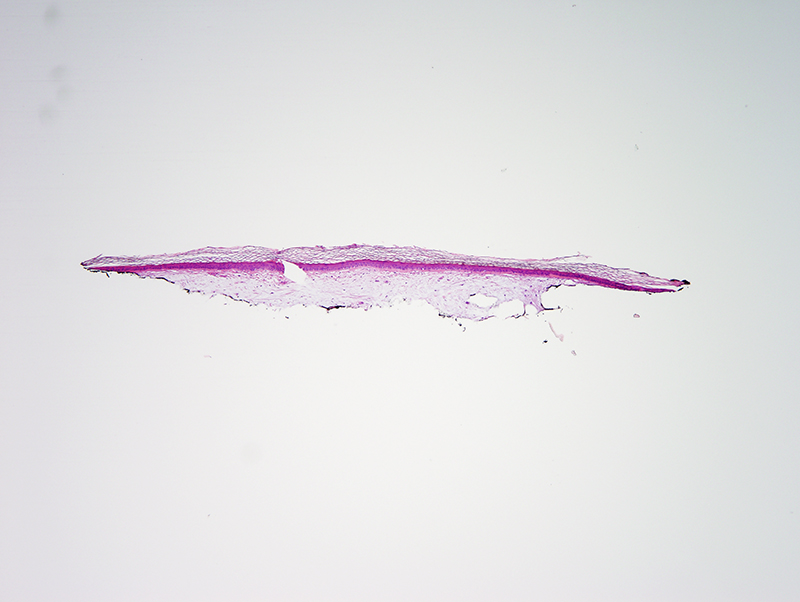 Slide 1: 45 year-old man with a white papule on his shin. R/O Scar.