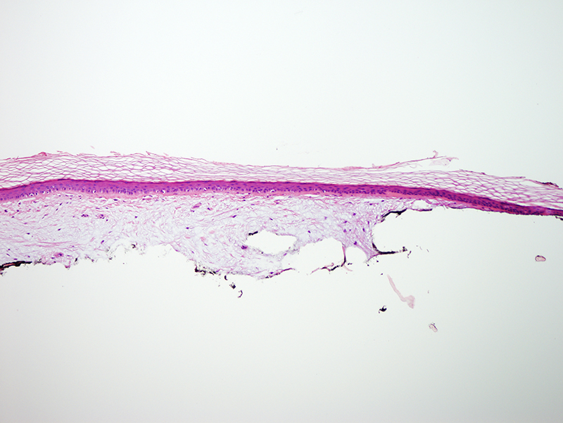 Slide 2: The biopsy shows prominent mucin deposition within the dermis.