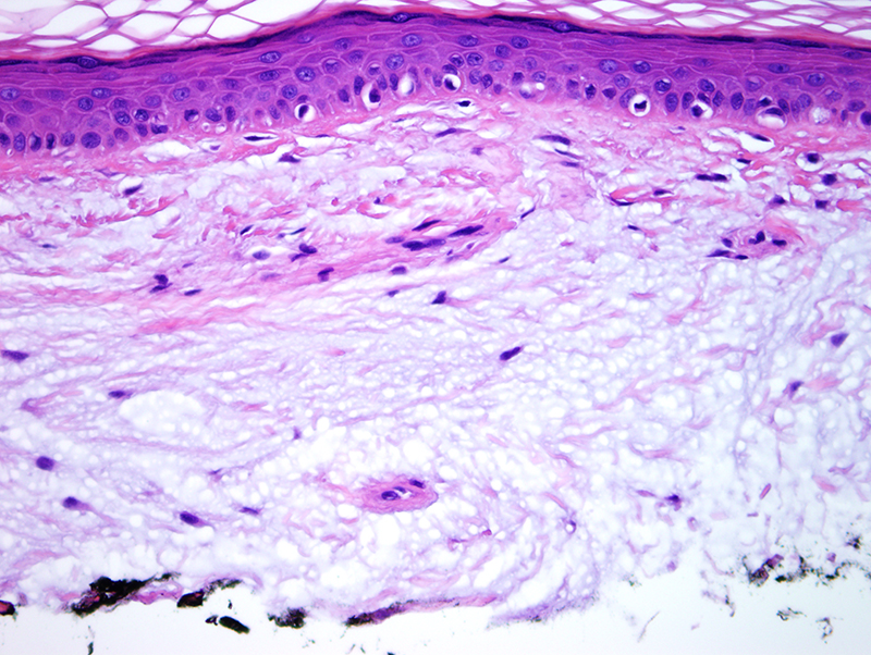 Slide 3: The differential diagnosis is with a myxoma.  Given the morphology as pools of mucin with concomitant hypocellularity it would be more in keeping with focal cutaneous mucinosis.
