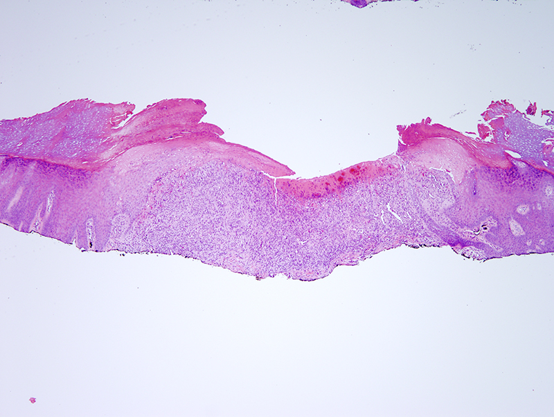 Slide 2: There is a central ulcer.  The adjacent epidermis appears hyperplastic and is surmounted by a relatively normal appearing stratum corneum. Underlying the ulcer is a spindle cell proliferation.