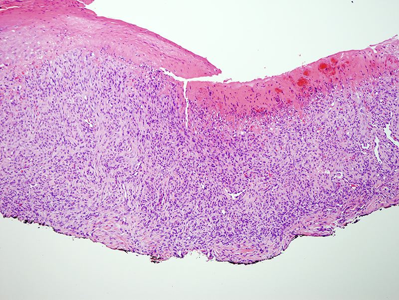 Slide 3: The lesion is hypercellular and is composed of spindled cells and intermingled inflammatory cells.