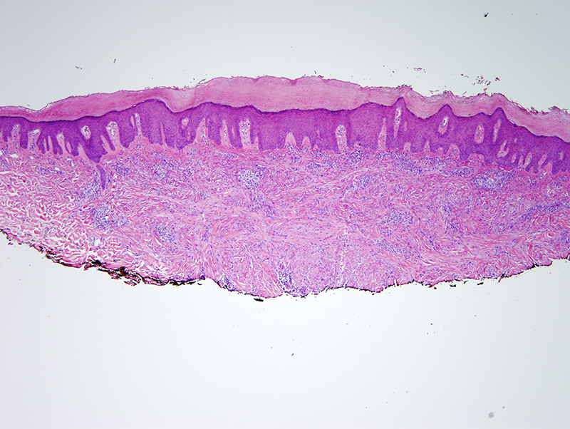 Slide 2: A proliferation of spindled cells is noted within the dermis.