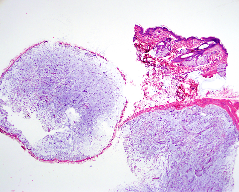 Slide 1: 50 year-old man with a lobulated lesion. The biopsy shows multiple nodules within the deeper dermis and subcutis that appear encapsulated.