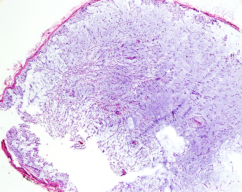 Slide 2: There is extensive mucin deposition really resulting in a myxomatous mucinous spindle cell lesion.