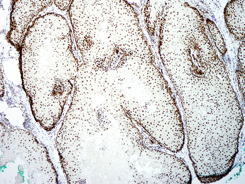 Slide 5: The neoplasm retains expression of MLH-1.