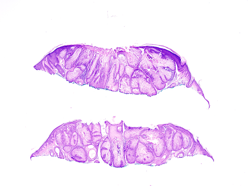 Slide 1: 50 year-old man.The biopsy shows a well differentiated sebaceous neoplasm characterized by lobules of sebaceous glands contiguous with the epidermis.
