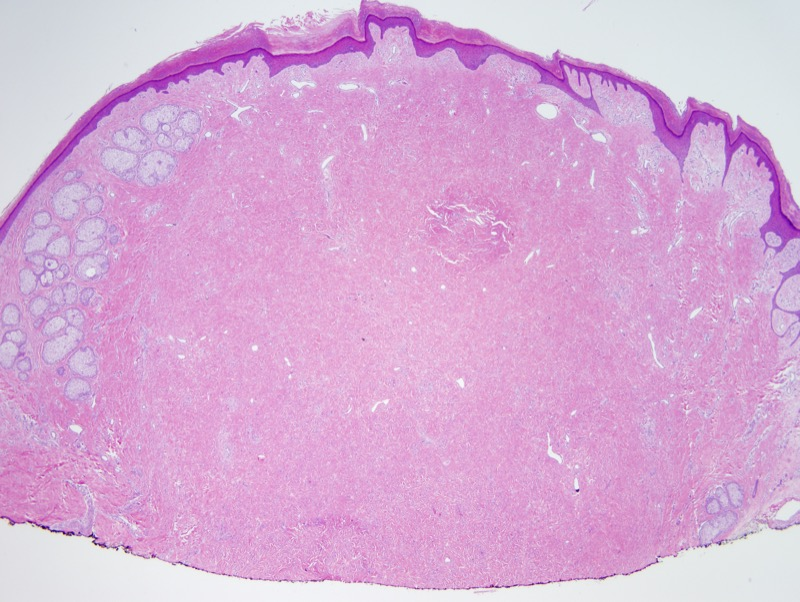 Slide 1: 55 year-old man with a leg nodule. There is a very extensive pattern of dermal fibroplasia. There is an epidermal collarette that demarcates this lesion from the epidermis.