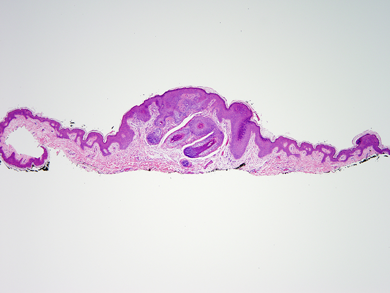 Slide 1: 50 year-old man with an abdominal skin lesion.