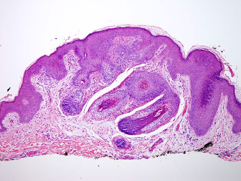 Slide 2: Multiple benign vellus hairs converge into a common follicular ostium.