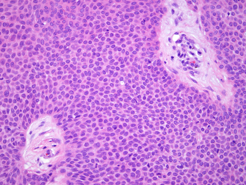 Slide 3: There are ducts of eccrine derivation amidst the monomorphic cuboidal cells typical for a poroma. In examining this poromatous neoplasm significant epithelial cell atypia is not identified.