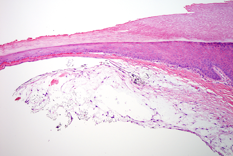 Slide 2: There is accumulation of mucin within the dermis with concomitant cystification.