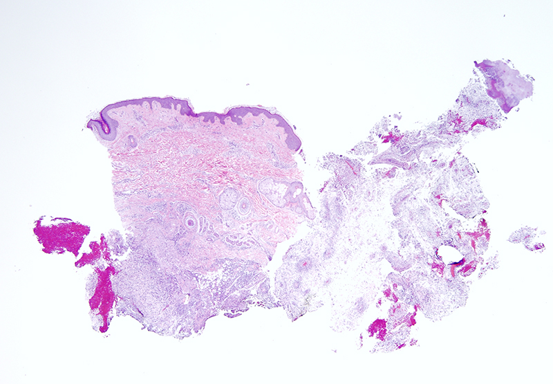 Slide 1: 32 year-old woman with a large nodule of the Left neck. R/O epidermal inclusion cyst. Within the subcutaneous fat there is a striking inflammatory lesion.