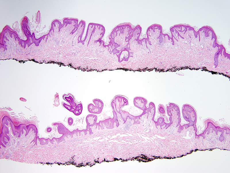 Slide 1: 50 year-old man with a linear plaque on his posterior neck. The bisected excision specimen shows a verrucous and papillomatous epidermal hyperplasia.