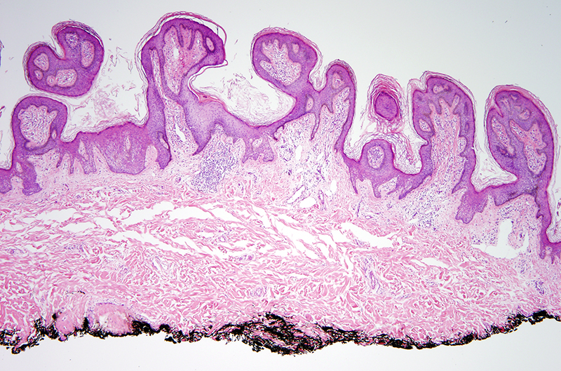 Slide 2: There is a supervening lymphocytic infiltrate present within the superficial dermis.