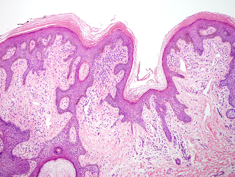 Slide 3: In areas the morphology is somewhat reminiscent of a reticulated seborrheic keratosis.
