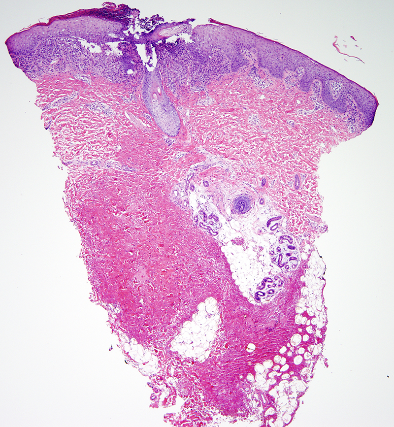 Slide 1: 6 month-old girl with a recalcitrant diaper rash consisting of few pink papulonodules. The biopsy shows a band-like infiltrate of histiocytoid appearing cells.  The infiltrate is focally permeative of the epidermis. The actual biopsy is centered around a follicle which is infiltrated by neutrophils with an overlying neutrophil imbued scale crust.