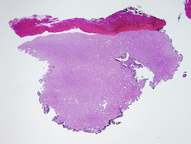 Slide 1: 20 year old man with a thigh nodule. The lesion is fragmented and consists of very cellular sheets of spindled cells.