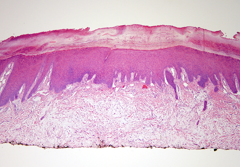 Slide 1: 30 year-old man with a left thumb foreign body.  The biopsy shows a spindle cell proliferation associated with haphazard bundles of sclerotic collagen.