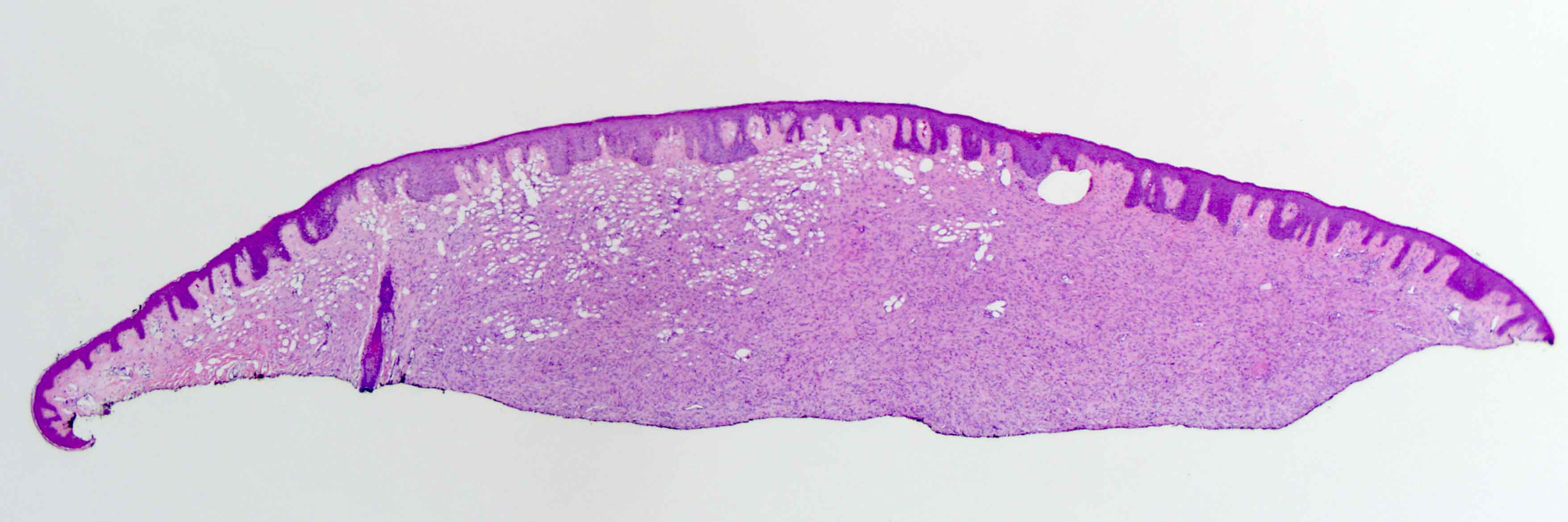 Slide 1: The shaved biopsy specimen shows an acanthotic epidermis. Within the dermis there is an spindled cell neoplasm that spans the entire dermis.  A 42-year-old female presented with an irregular brownish red plaque under the right breast growing in size for 9 years.
