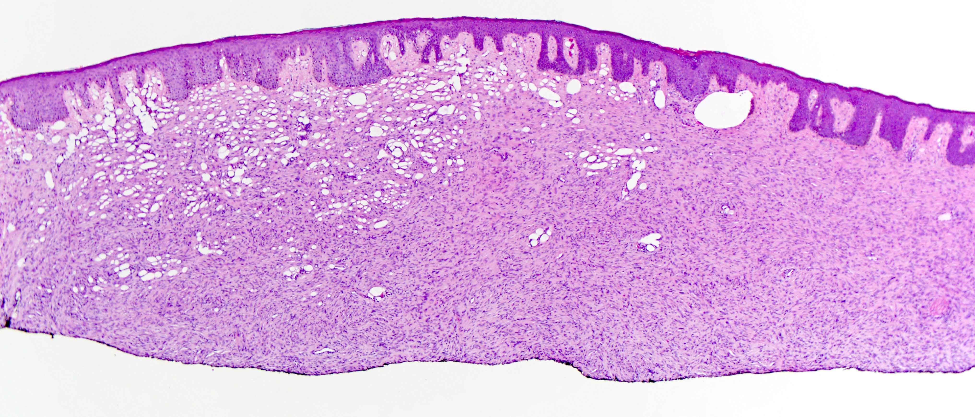 Slide 2: The spindled cell neoplasm is manifesting a storiform growth pattern along with entrapment of adipocytes resembling a honeycomb architecture.