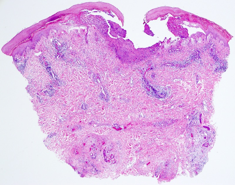 Slide 2: In this low power view the biopsy shows an interface dermatitis with degenerative necrolytic changes of the epidermis.