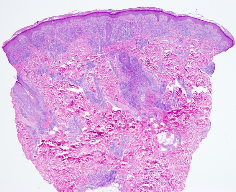 Slide 1: 21 year old female. Left lower arm.<br><br>The biopsy shows a very dense infiltrate within the dermis. The infiltrate assumes a band-like lichenoid pattern superficially.