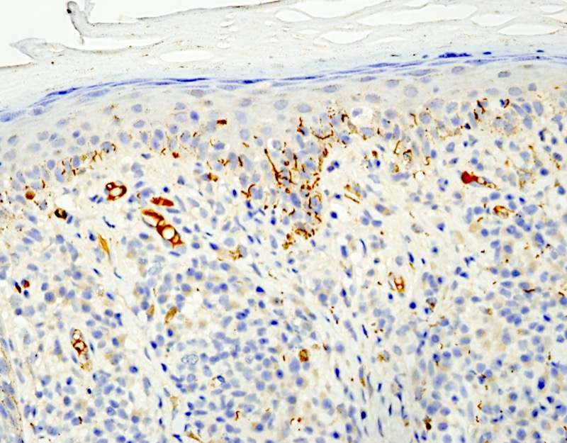 Slide 8: There are many spirochetes with cork-screw morphology within the epidermis.