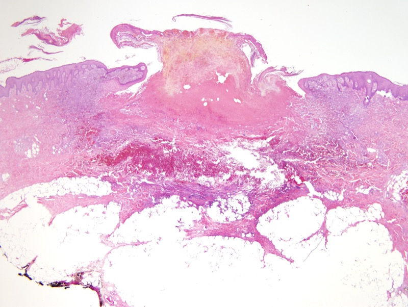 Slide 6: A second biopsy specimen with a central ulcer extending deep into the dermis.