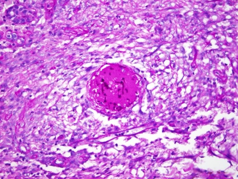 Slide 9: PAS stain showing vascular invasion.