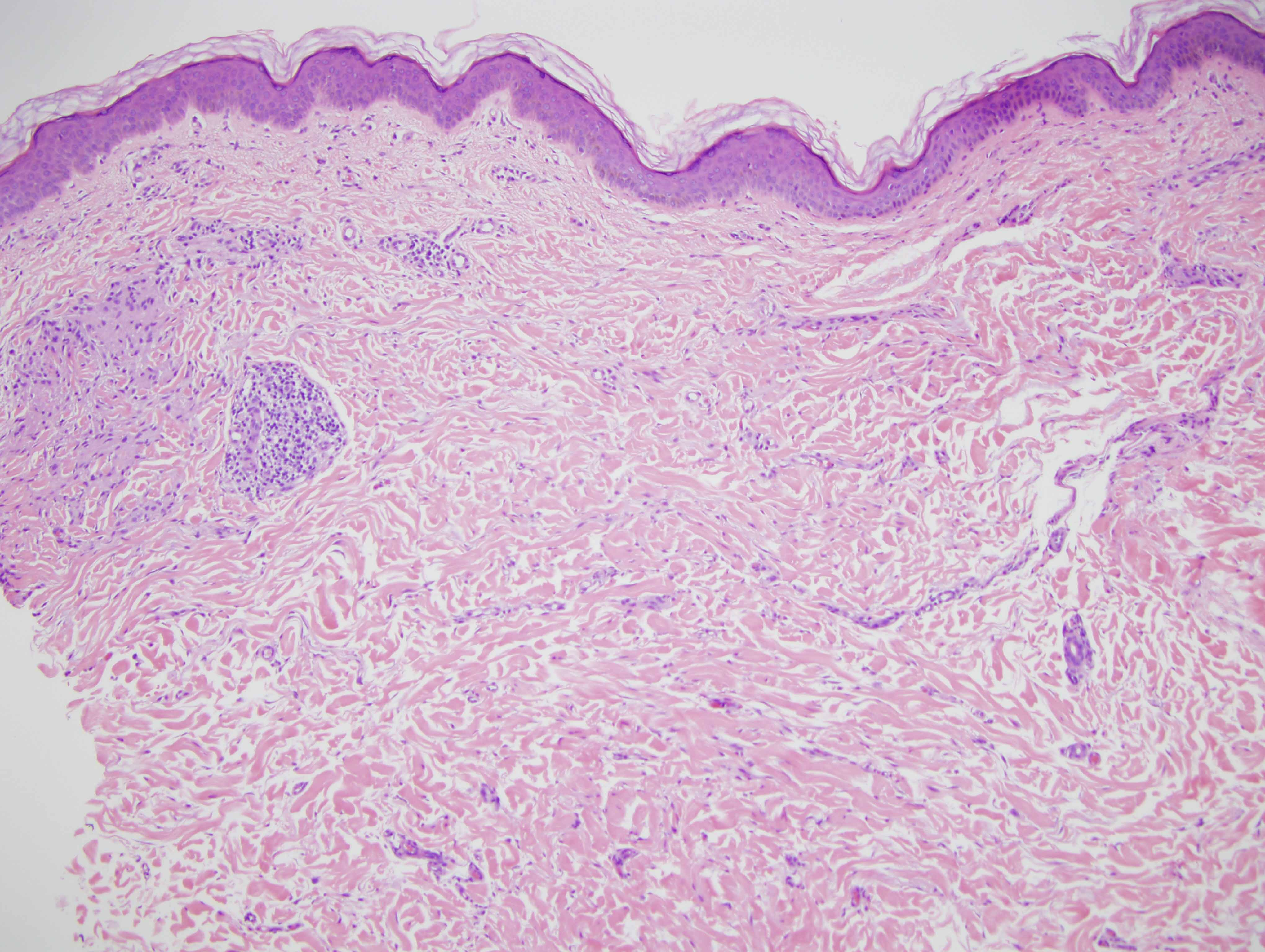 Slide 1: The biopsy shows discontiguous superficial and deep foci of interstitial histiocytic infiltration.