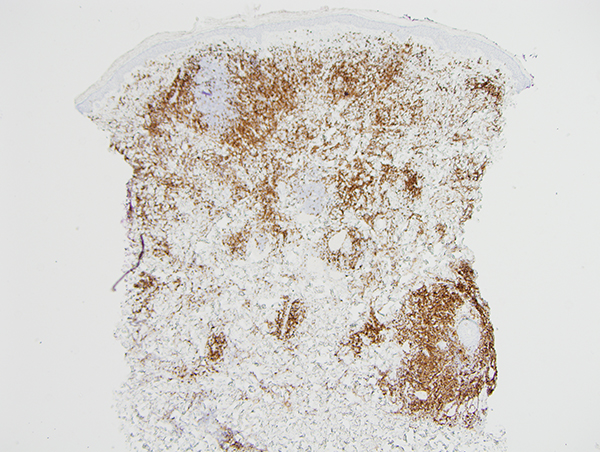 Slide 4: There is a significant degree of T cell infiltration as revealed by the degree of staining of the infiltrate for CD3 and CD5 (pictured)