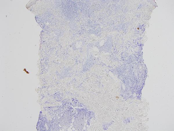 Slide 10: Lambda-ISH stain