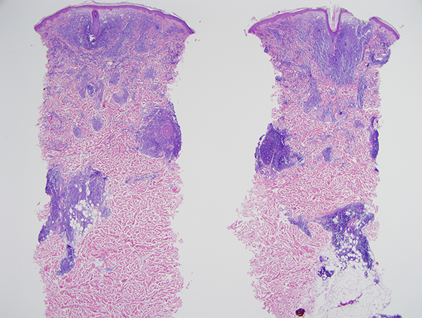 Slide 1: The biopsy shows a superficial and deep lymphocytic infiltrate. The infiltrate is not epidermotropic. It does focally extend into the subcutaneous fat. The infiltrate is both a diffuse and nodular one. It is disposed around vessels, adnexal structures and also permeative of the interstitium.